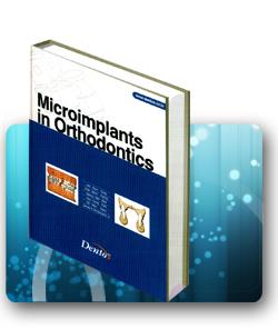 микроимпланты в ортодонтии книга