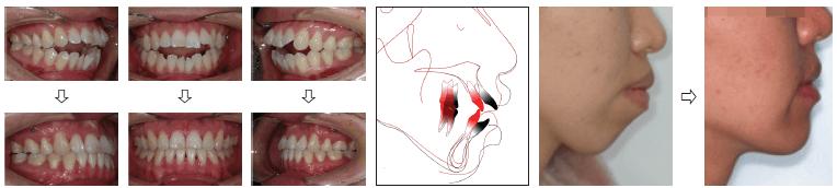 Практический курс Использование микро имплантов при лечении зубочелюстной аномалии» в киеве.v